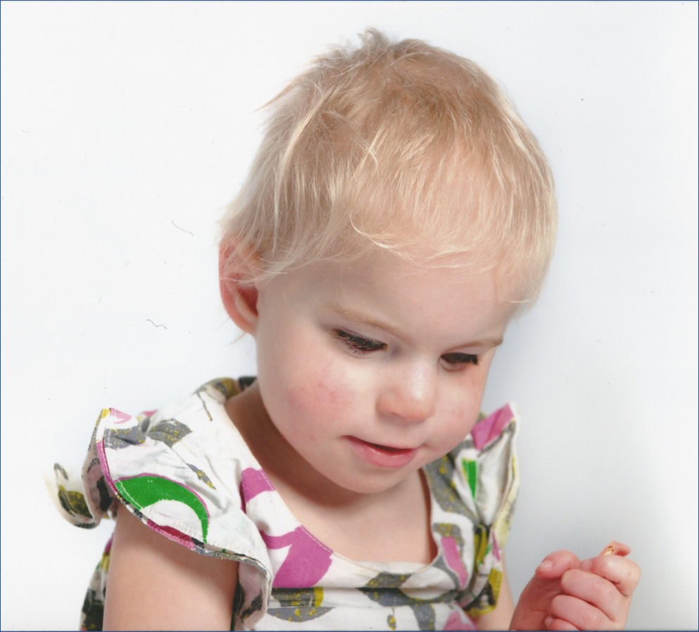 Image shows child with a MACS condition